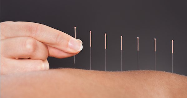 Holistic Healing: Acupuncture